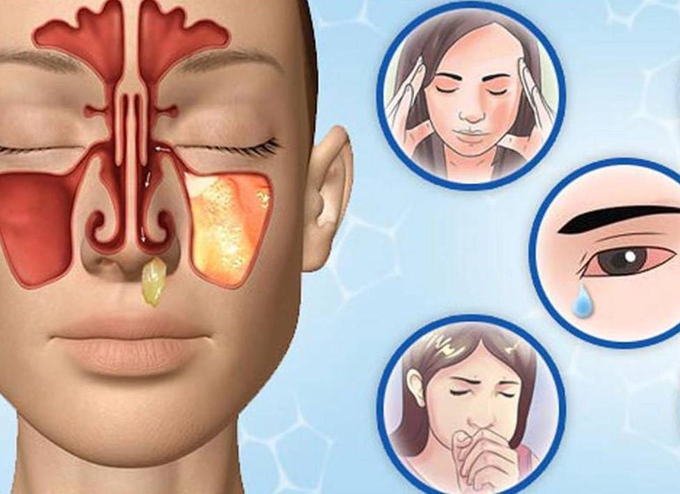 Симптомы полисинусита