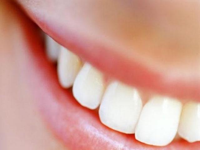 О кабинетном методе отбеливании зубов