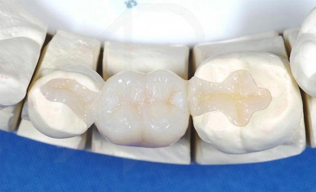 Когда нужны зубные вкладки?