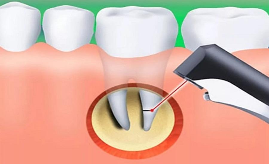 Резекция верхушки корня зуба лазером
