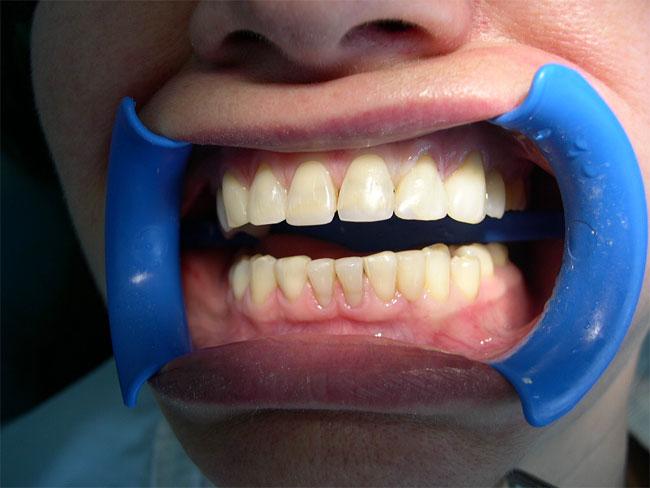 Что означает «лазерная стоматология»?