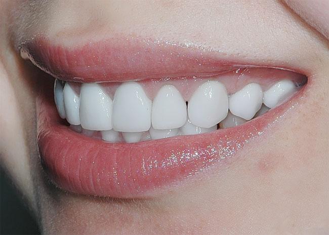 Коррекция улыбки возможна!