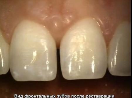 Принципы наращивания зубов