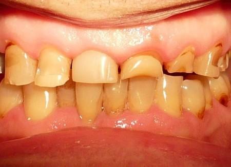 Стираемость твердых тканей зубов