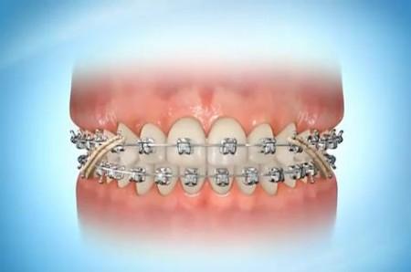 Виды брекетов в стоматологии