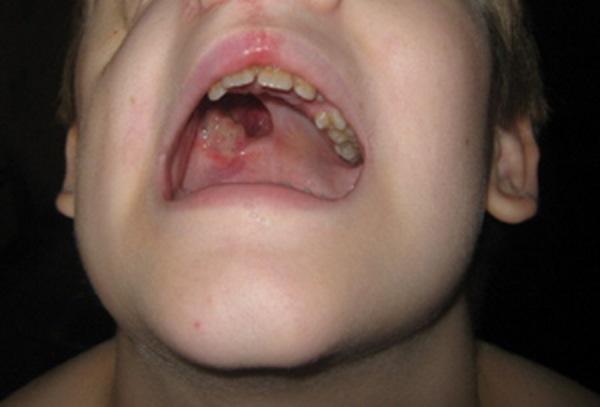 фибросаркома челюсти