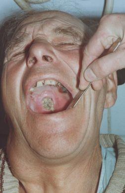 Карцинома (рак) твердого и мягкого нёба