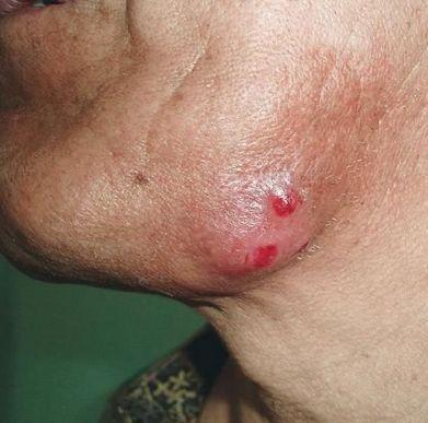 Актиномикоз в полости рта и челюстно-лицевой области