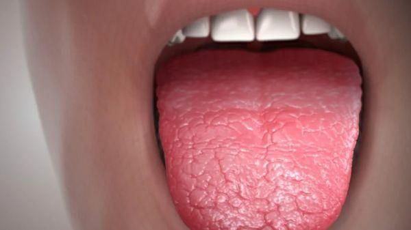 язык при синдроме Шегрена