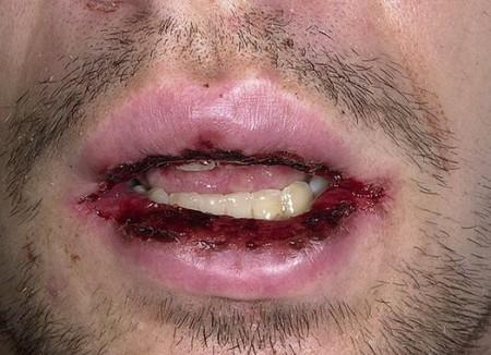 Многоформная экссудативная эритема и ее проявление во рту