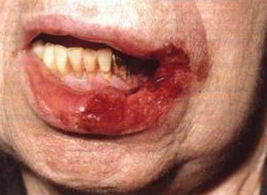 Милиарно – язвенный туберкулез и его проявление во рту