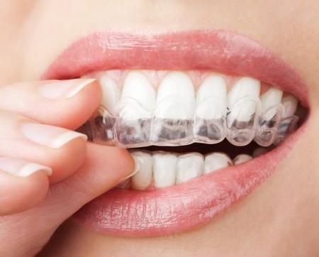 Отбеливание зубов в домашних условиях или домашнее отбеливание