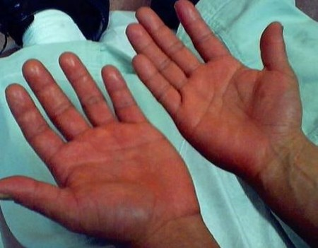 Характерное покраснение рук при эритремии