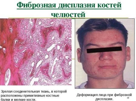 Фиброзная дисплазия и ее проявление в ротовой полости