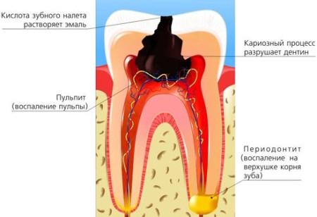 Періодонтит як вогнище стоматогенної хроніоінтоксикації