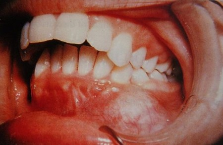 Хондрома и хондросаркома – их проявление в полости рта