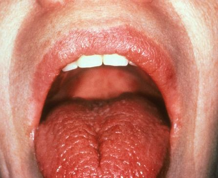 Вид языка при ксеростомии