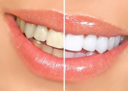 Профессиональное отбеливание зубов на приеме у стоматолога