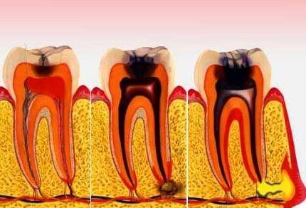 Клініка, патологічна анатомія, рентгенологічна характеристика і діагностика хронічних форм періодонтиту
