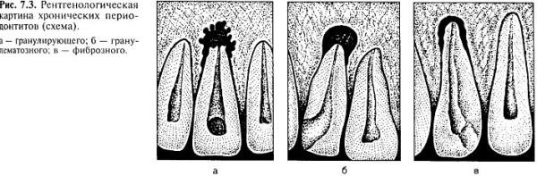 патологічна анатомія, рентгенологічна характеристика і діагностика хронічних форм періодонтиту