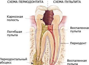 Клініка гострого періодонтиту
