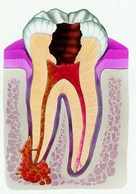 диференціальна діагностика гострого періодонтиту