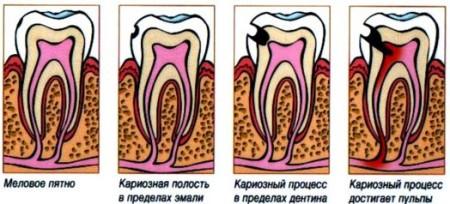Стадії розвитку карієсу зубів