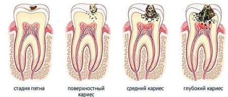 Лікування карієсу зубів різних видів