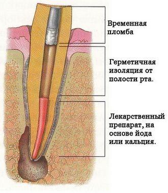 Гострий періодонтит та його лікування