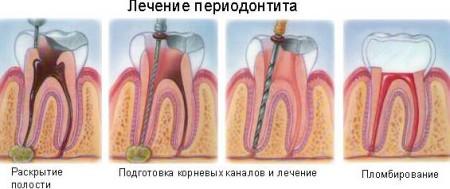 Етапи лікування гострого періодонтиту