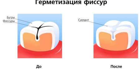 Профілактика карієсу зубів