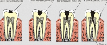 Різновиди карієсу зубів