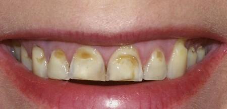 ерозія зубів