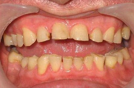 Патологічне стирання зубів