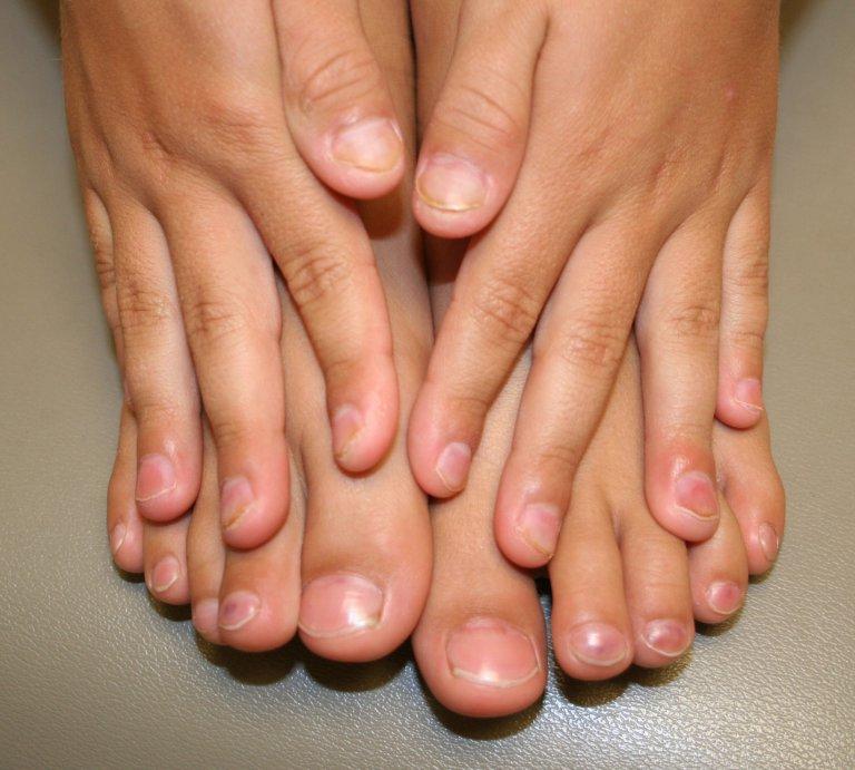 Частичный онихолизис
