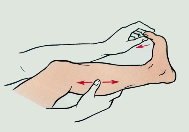 Вытягивание пятки при судороге
