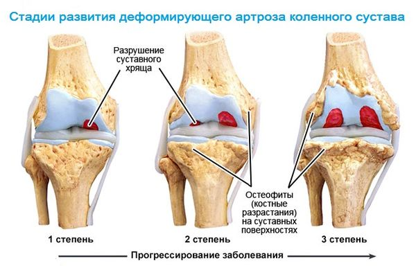 Новые методы лечения артроза коленного сустава