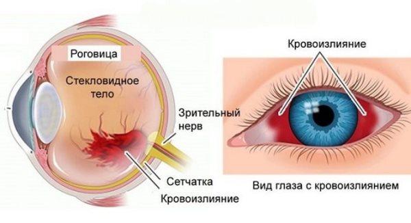 механизм кровоизлияния в глазу