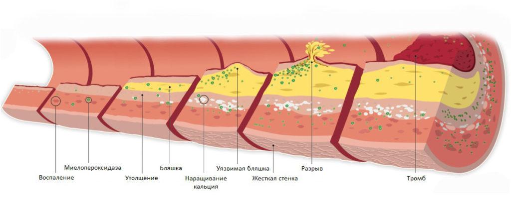 Кальциевые бляшки и воспаления