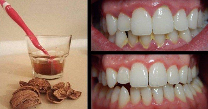 Грецкий орех от зубного камня