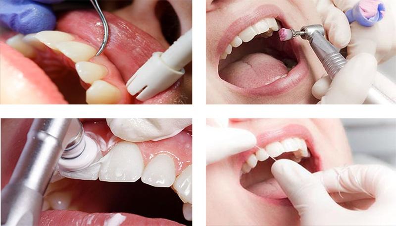 Профессиональная чистка зубов и удаление зубных отложенный
