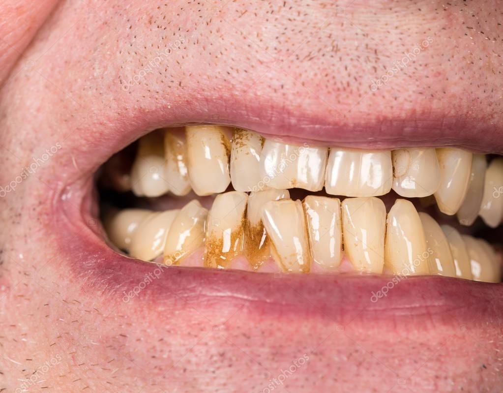 Скопление налета на зубах