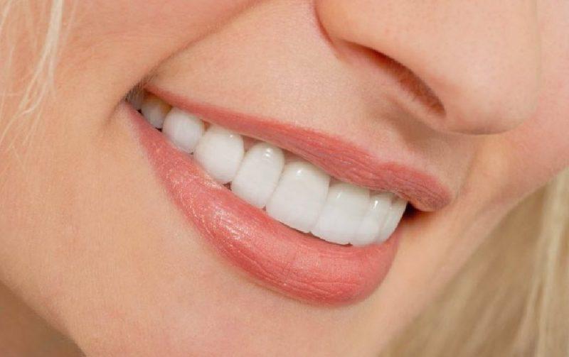 Люминиры для красивой улыбки