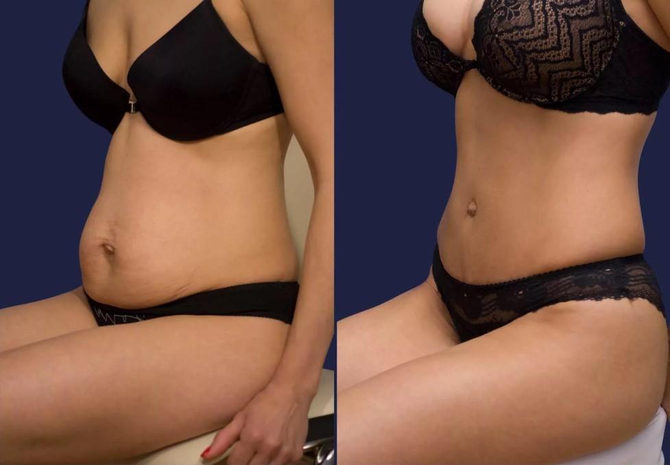 До и после липоскульптурирования
